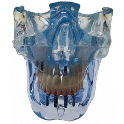Mandíbula e Maxila com fossa articular, implantes, próteses e Procotolo com 4 implantes