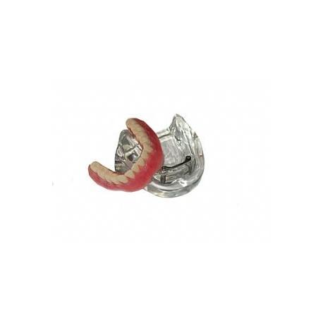 Overdenture inferior com 2 implantes barra clips