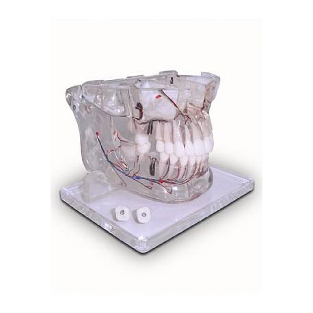 Mandíbula e Maxila com Ramificação e com 2 Implantes Prótese Parafusada