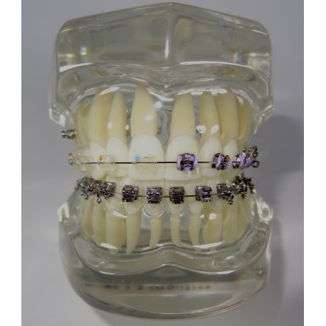 Classe I Transparente c/ Braquete Misto: Metálico / Autoligável / Estético e 1 Mini Implante