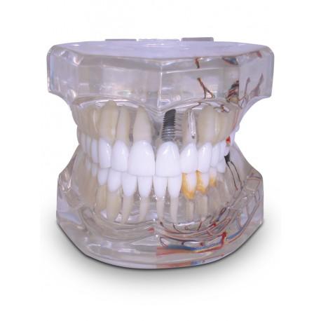 Adulto com 1 Implante Prótese Cimentada