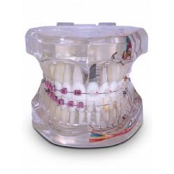 Modelo Adulto Super c/ Braquetes: Metálico / Estético e 1 Mini-Implante (Téc.: Roth)