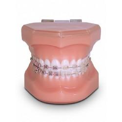 Classe I Rosa / Branco c/ Braquete Misto Metálico / Estético, Tubos, Bandas e 1 mini-implante