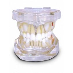 Pediatria 10 Anos Transparente Dentição Mista