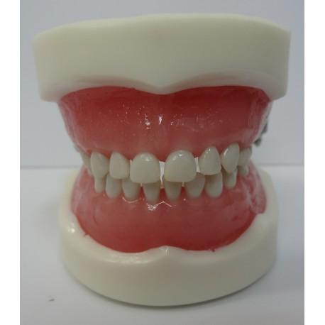 Manequim Pediatria 5 Anos c/ Dentes Removíveis, Gengiva Flexível 20 Elementos e Art. Plástico