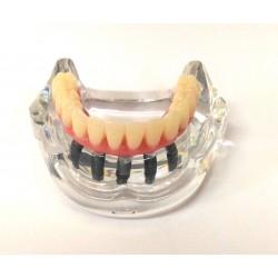 Protocolo de Branemark com 5 implante