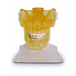 Mandíbula e Maxila s/ Ramificação c/ Fossa Articular, Braquetes Metálico / Estético e 1 Mini-Implante