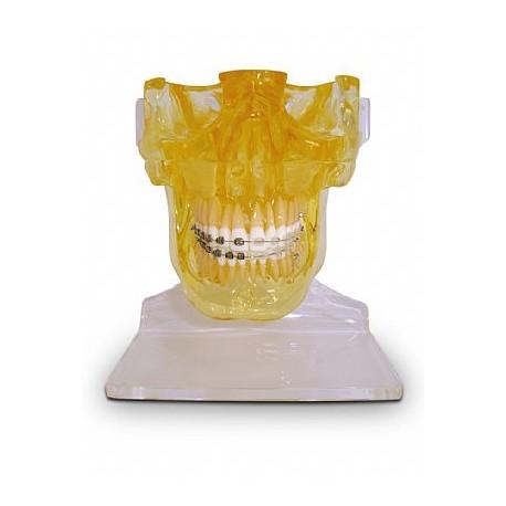 Mandíbula e Maxila s/ Ramificação c/ Fossa Articular, Braquetes Metálico / Estético e 1 Mini-Implante (Téc.: Roth)