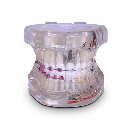 Modelo Adulto Super c/ Braquetes: Metálico / Estético e 1 Mini-Implante