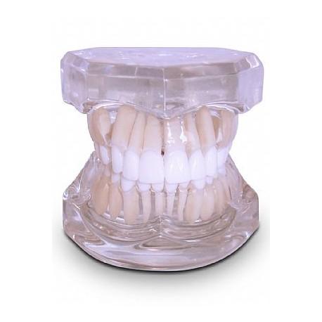 Classe II Transparente ou Rosa com Extração e 2 Micro Implantes