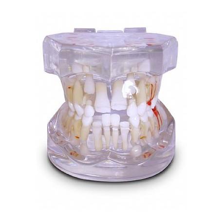 Pediatria 7 Anos Transparente Dentição Mista