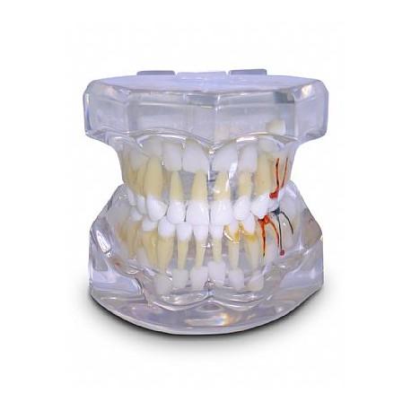 Pediatria 5 Anos Transparente Dentição Decídua c/ Germes